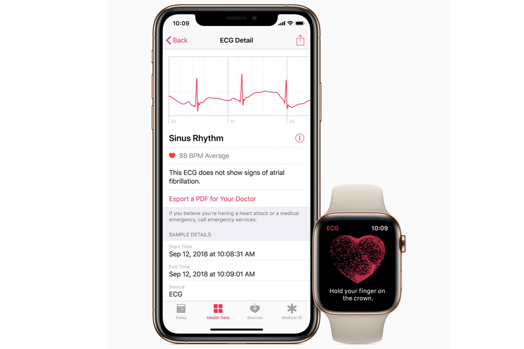 Apple Watch ECG Feature Syncing Back to Health App