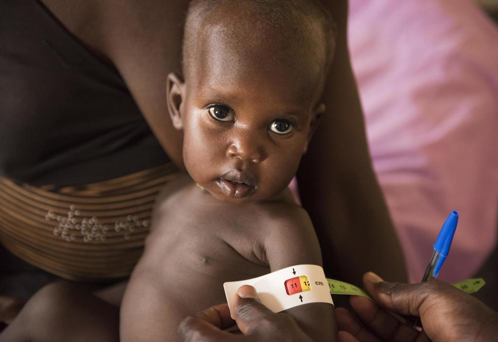 Ein Kind wird im IRC-Zentrum für Unterernährung in Panthou, Südsudan, vermessen. Quelle: Charles Lomodong/IRC