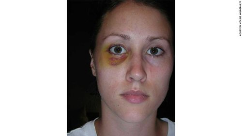 Holderness after Porter punched her while on a trip in Italy, photo via  CNN