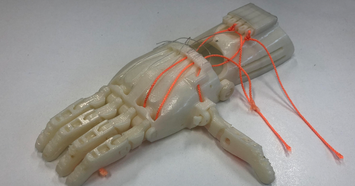 Assembled artificial hand for landmine victims in Cambodia