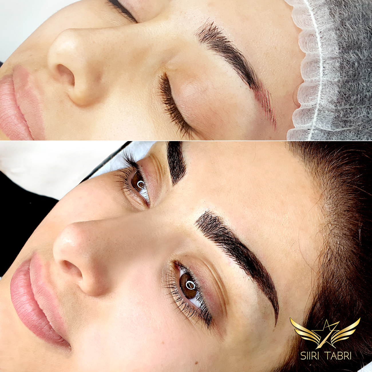 SharpBrows Light microblading. Sometimes you just have to fix old and quite strange pigmentation/microblading. Light microblading is ideal for that.