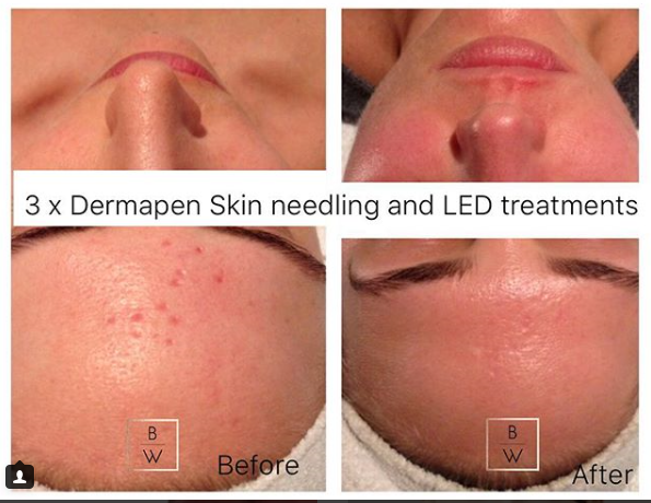 Skin Needling & LED - Scar revision included 3 x Dermapen session and LED light Therapy