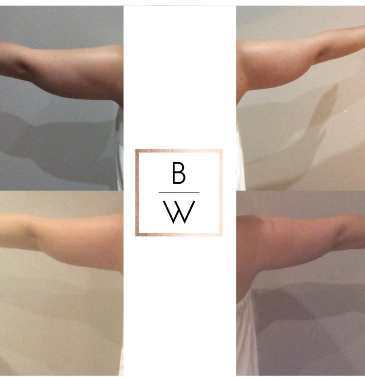 Fat Freeze - Upper Arms - FAT FREEZE | with Cool Tech. 12 weeks after 1 cup application to each arm. 6cms lost