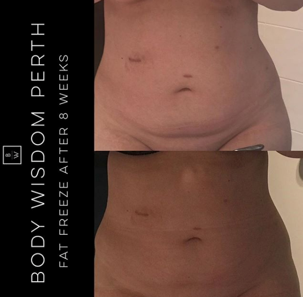 Fat Freeze - Lower Stomach - FAT FREEZE   with Cool Tech. 8 weeks after 1 application of lower pouch. 10cm lost