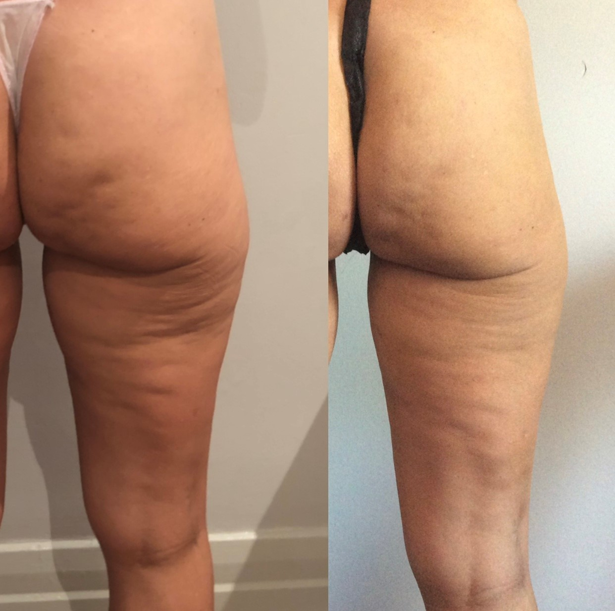 LPG Endermologie - Reducing Cellulite