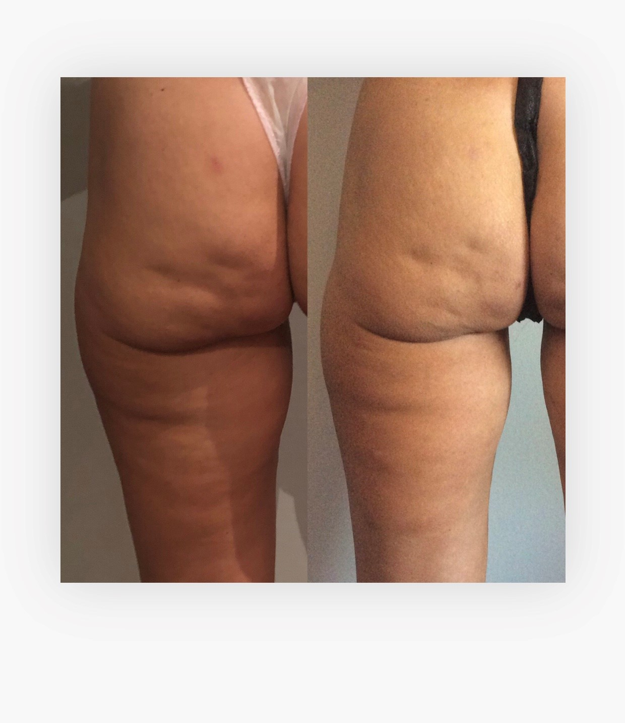 LP G Alliance Cellulite Reduction Treatment - Half way through course