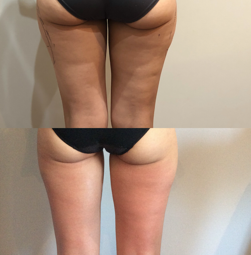 REGEN MAXIMUS - This is a after 6 sessions skin smooth CELLULITE GONE
