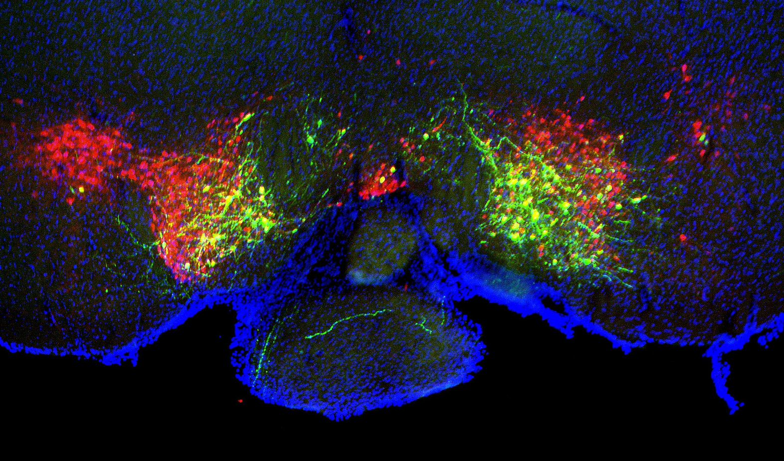 NAc-projecting VTA neurons (green), VTA dopamine neurons (red), and nuclei (blue)