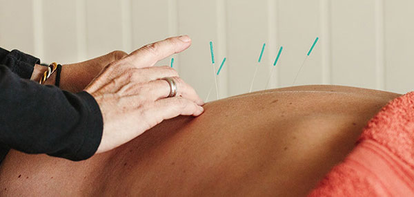emily_smith_acupuncture_acupuncture.jpg