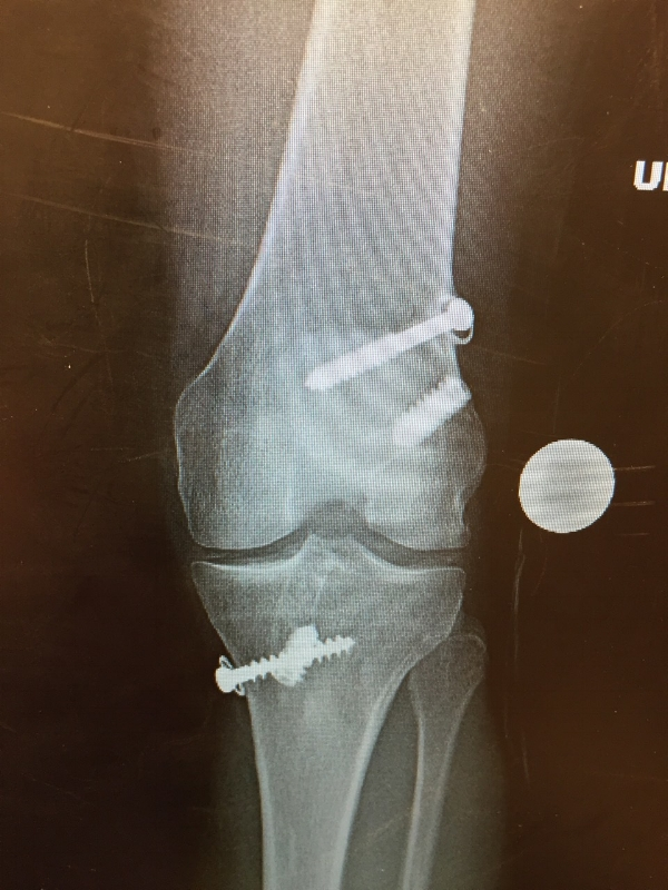Orthopedic surgeries help put a skier's body back together, but it's up to you to help it heal.1989 Right knee dislocation fixed by Dr. Steadman - South Lake Tahoe, CA