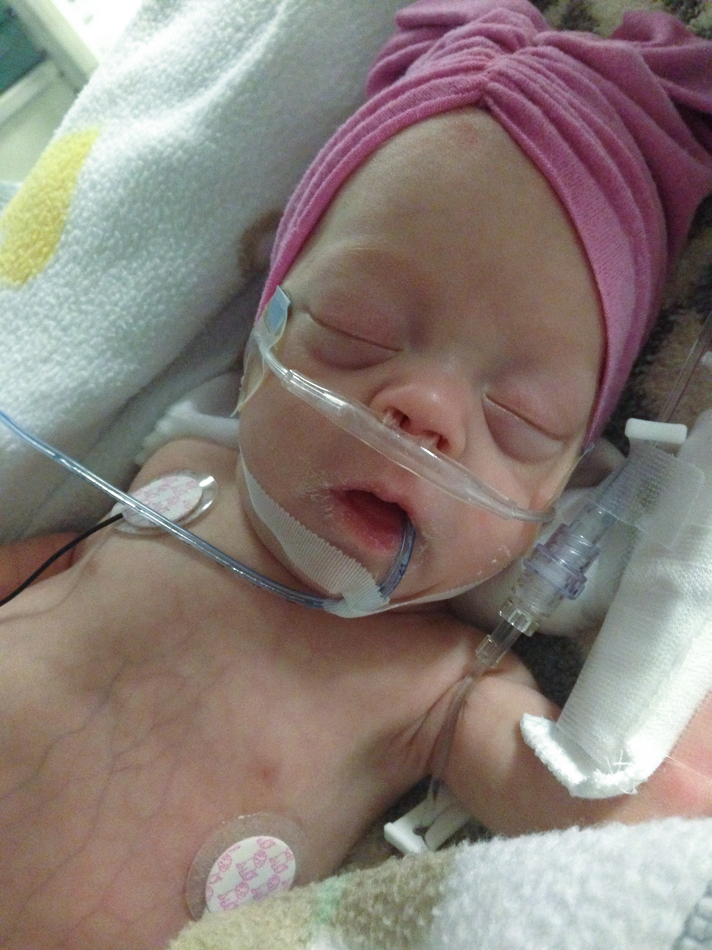 addie belle - diary of a NICU dad - day 79 - shegotguts.com-1-19.jpg