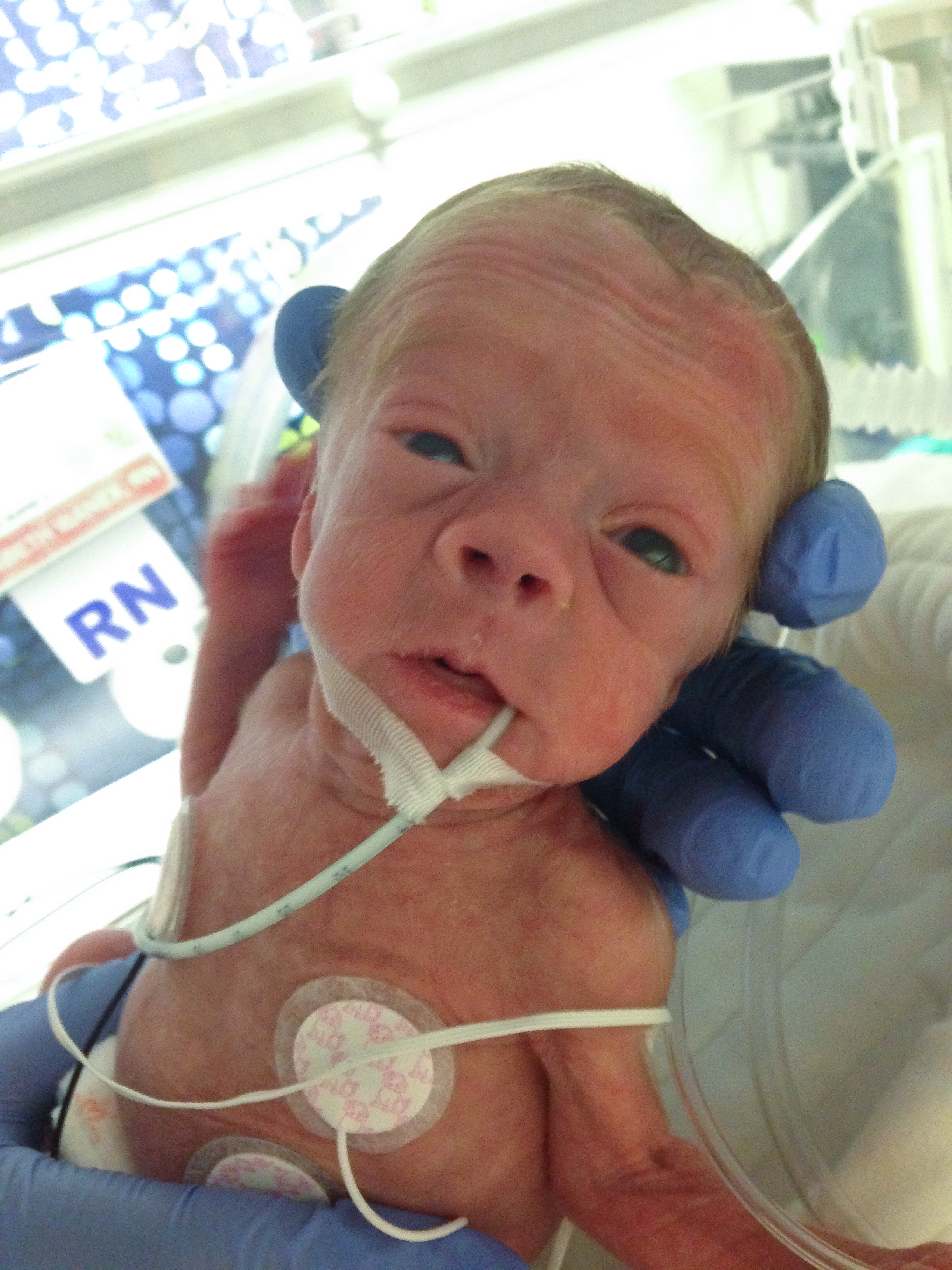 Addie Belle with her orogastric tube, or OGT