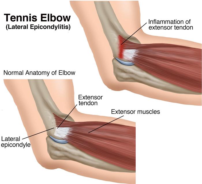 tennis elbow encinitas