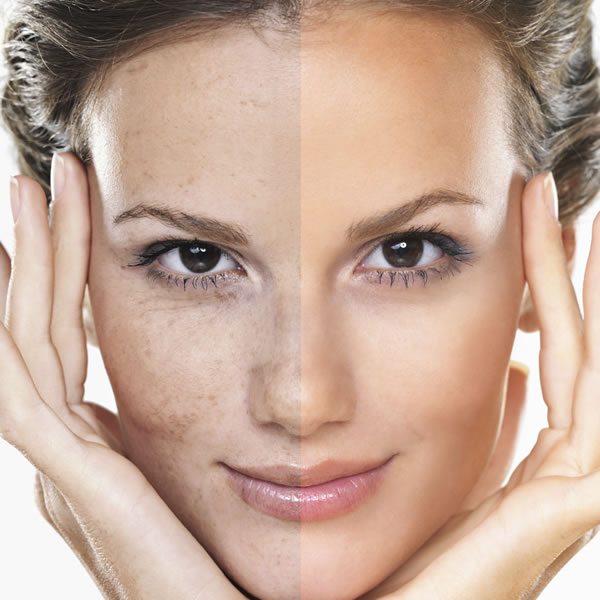Pigmentation Rejuvenation Treatments:   Collagen Induction Therapy - NanoFractional Radio Frequency MicroNeedling Treatment Milk Peel(Glycolic/Salicylic/Lactic) Microdermabrasion & Chemical Peel VI Peel ZO Stimulator Peel ZO 3-Step Peel   IPL Photofacial