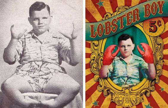 CIRCU5 - lobster boy