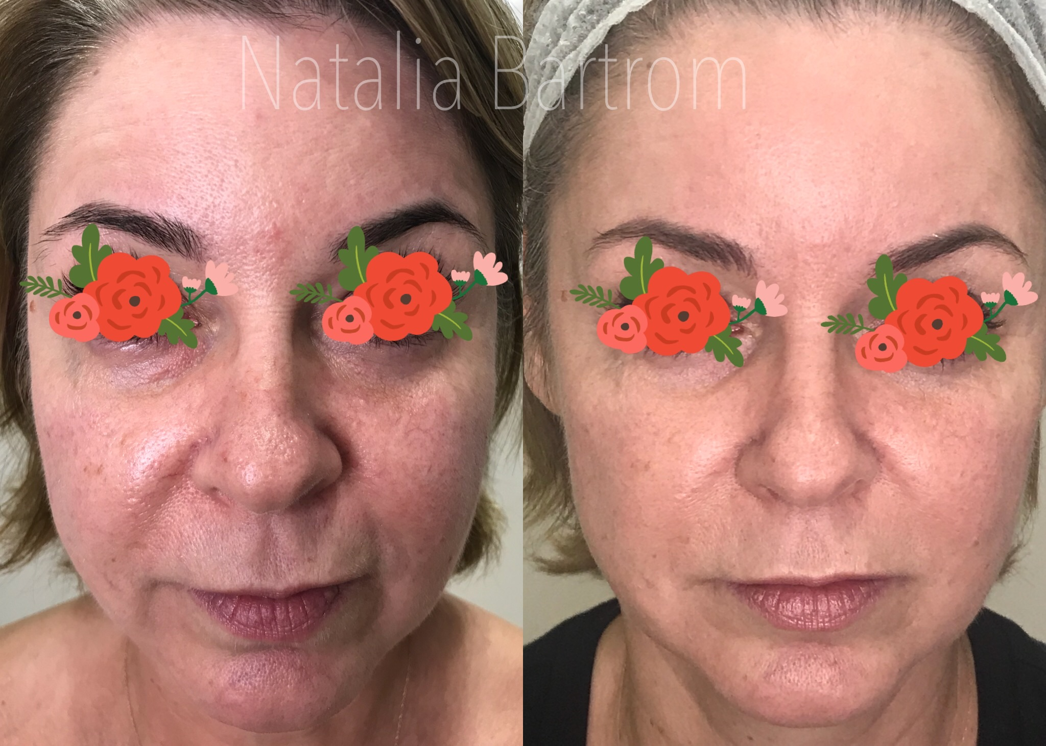 before and after - 1 treatment (50 years old client)
