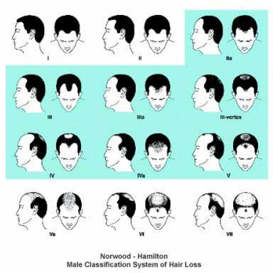 Male Classification system of hair loss