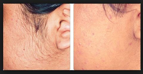 Fast, effective, permanent -Laser Hair Removal