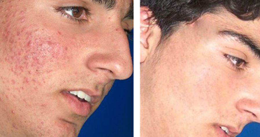 Good news!  This treatment is much more cost effective than some lasers.