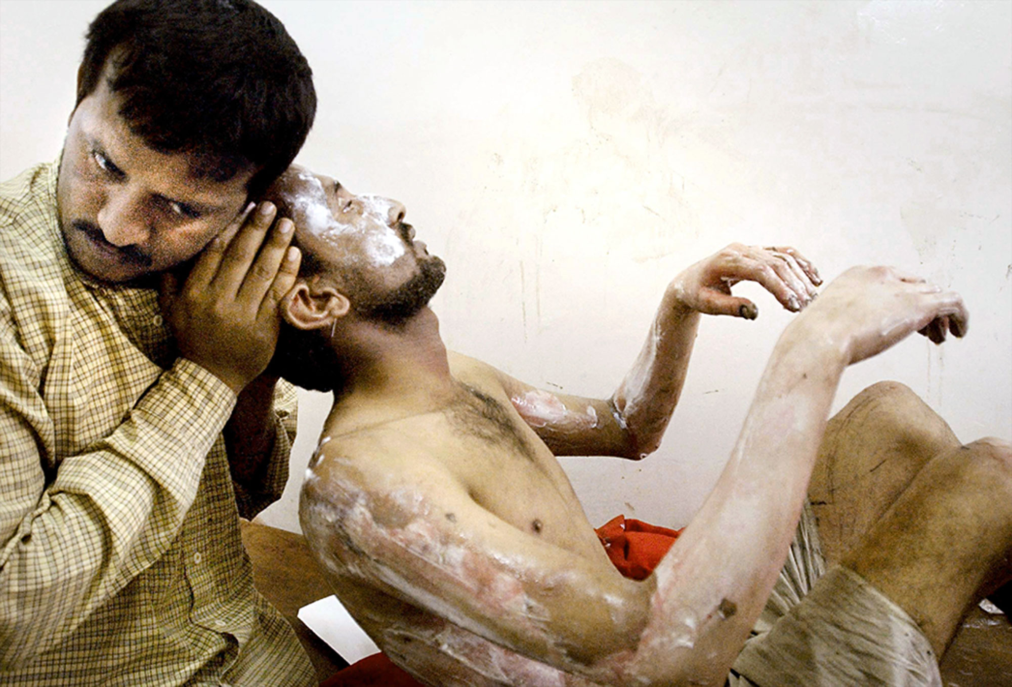 Mohammad Hussein, 26, right, is held by his brother, Alla Asir, after he was severely burned by an exploding fuel storage tank that he was looting on April 18, 2003. With no functional police and the country's infrastructure in ruins, Iraqi citizens took to looting all public facilities.