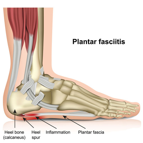 124273737-1plantar-fasciitis-3d-medical-vector-illustration-on-white-background_500x500.jpg