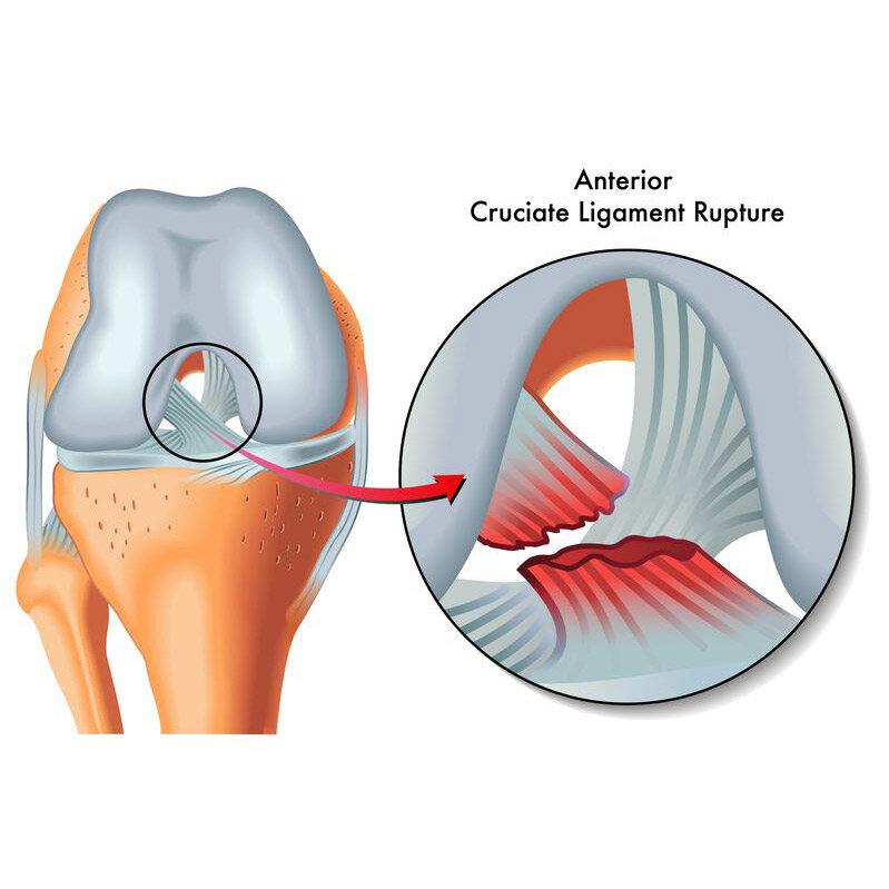 s21961112-anterior-cruciate-ligament-rupture_1300x1300.jpg