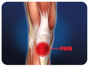 paterllar-tendinitis-large.jpg