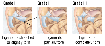 Ligamentwriststrain2.jpg