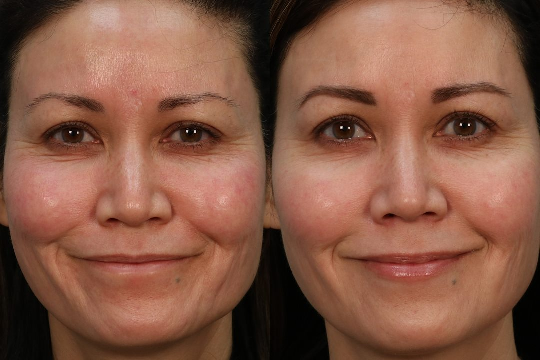 Aquagold finetouch microneedling before and after med spa