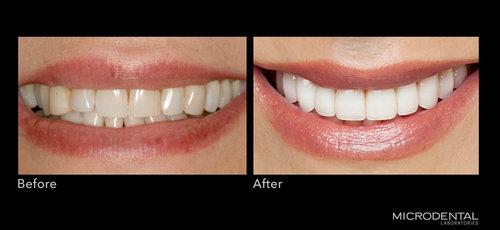 Dentistry by Dr. Alan Montrose, Beaverton, OR