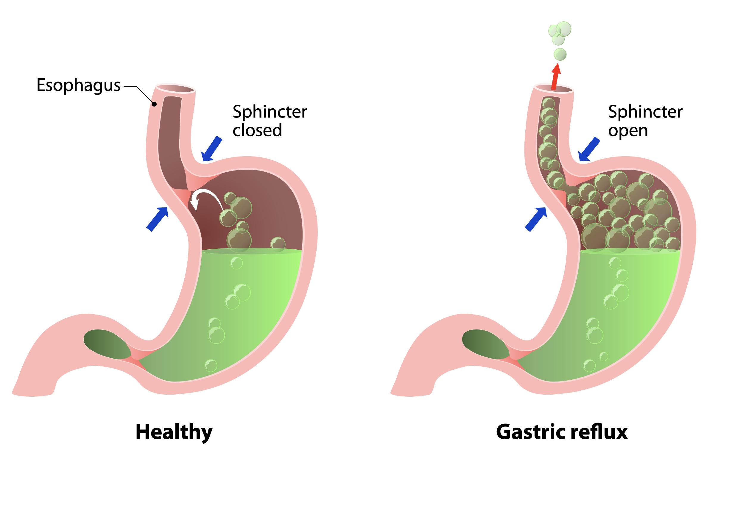 acid-reflux-diagram