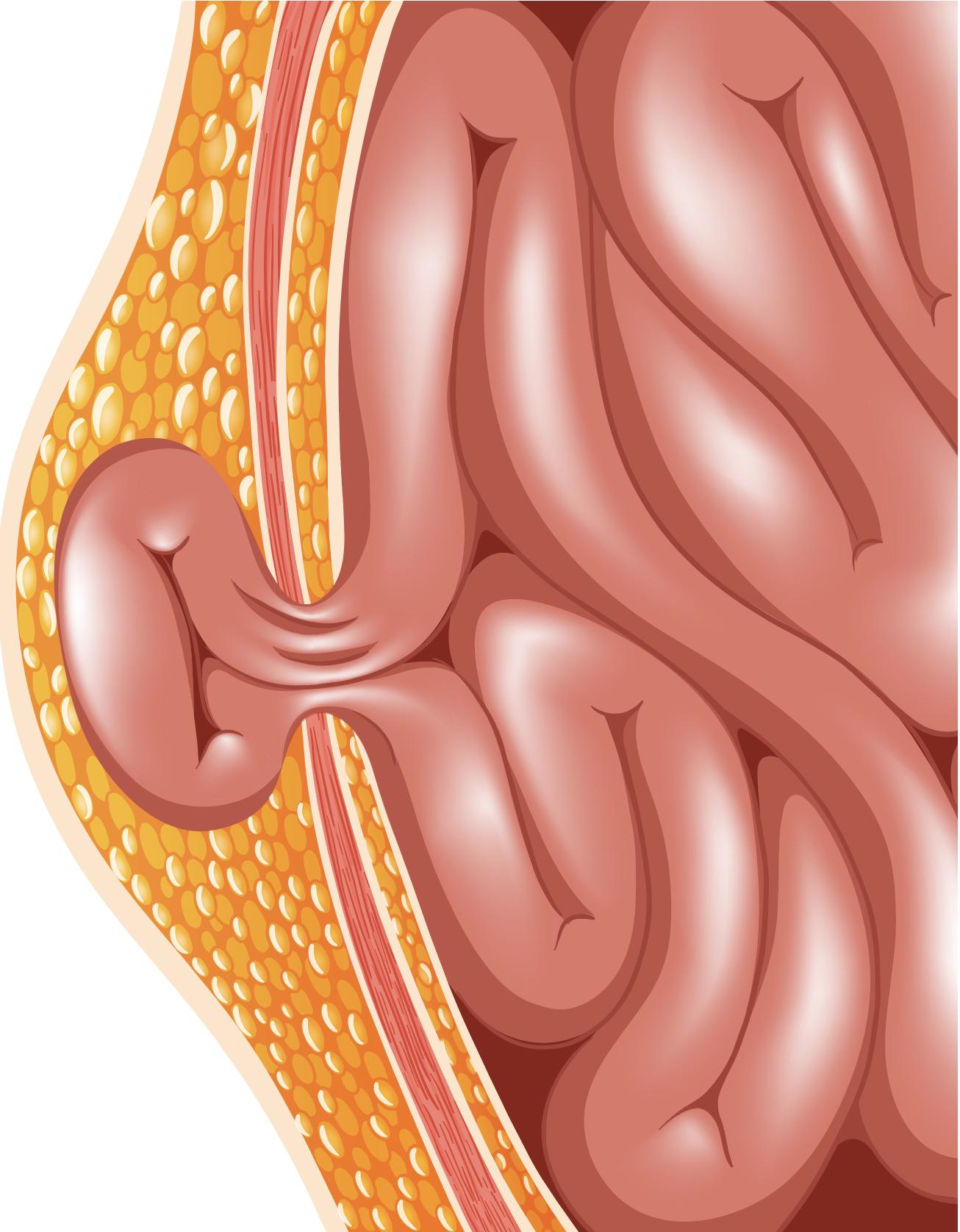 hernia-formed