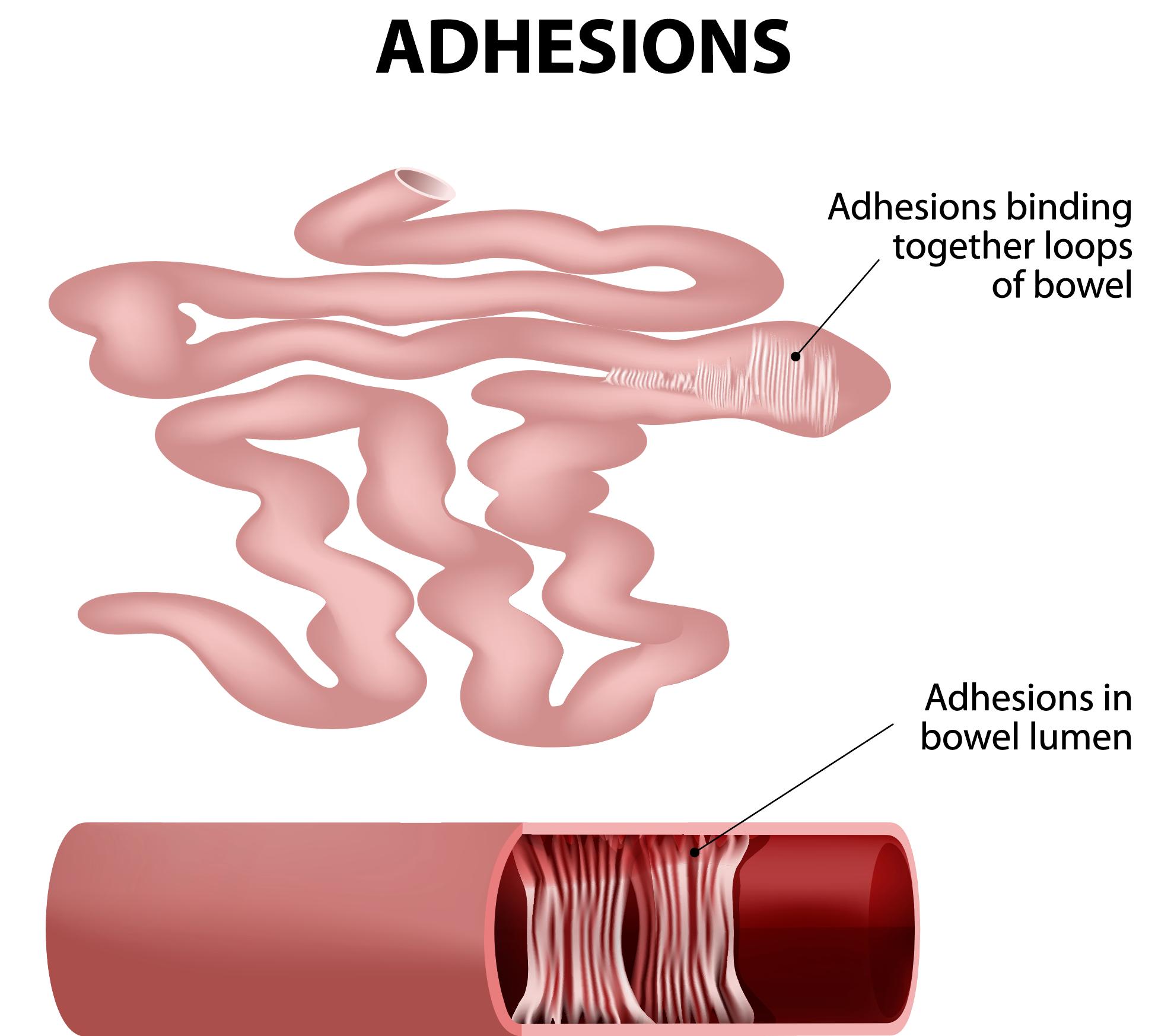 small-bowel-or-intestine-adhesions