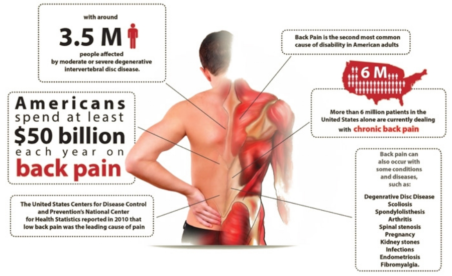 Low Back Pain Invictus Chiropractic Sports Injury Chiropractor In Centennial Co