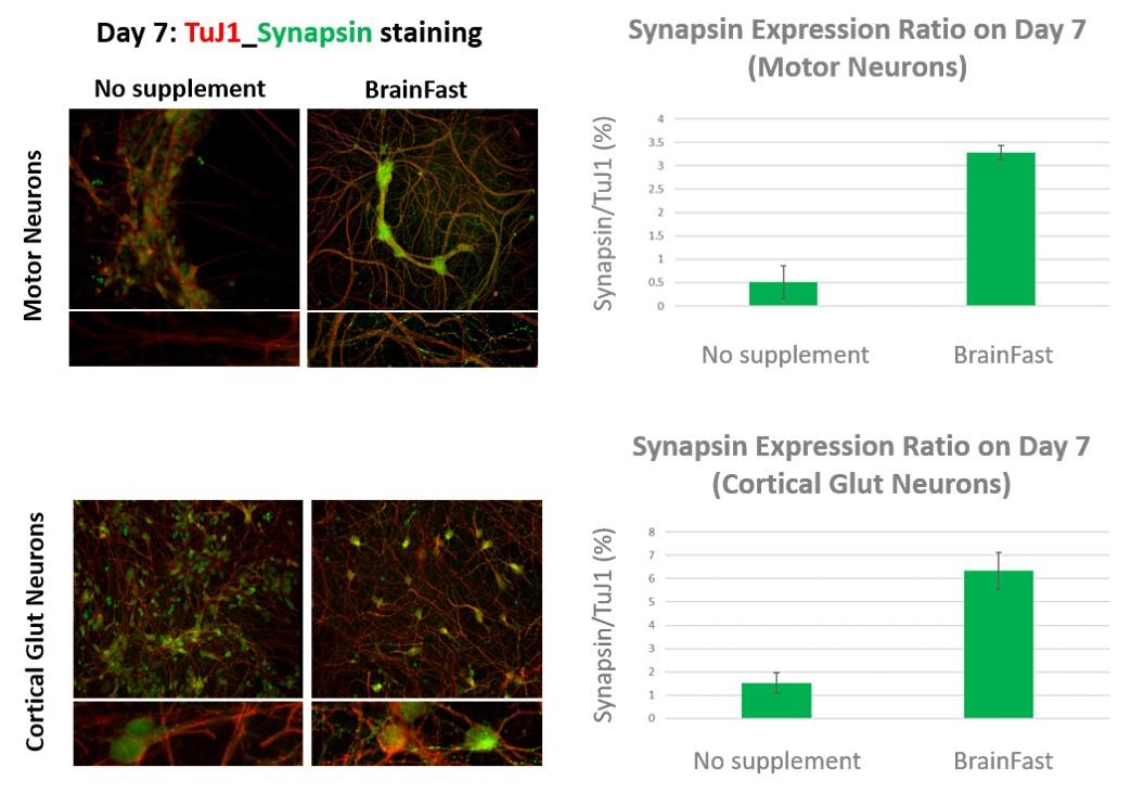 BrainFast Synapsin Stain.jpg