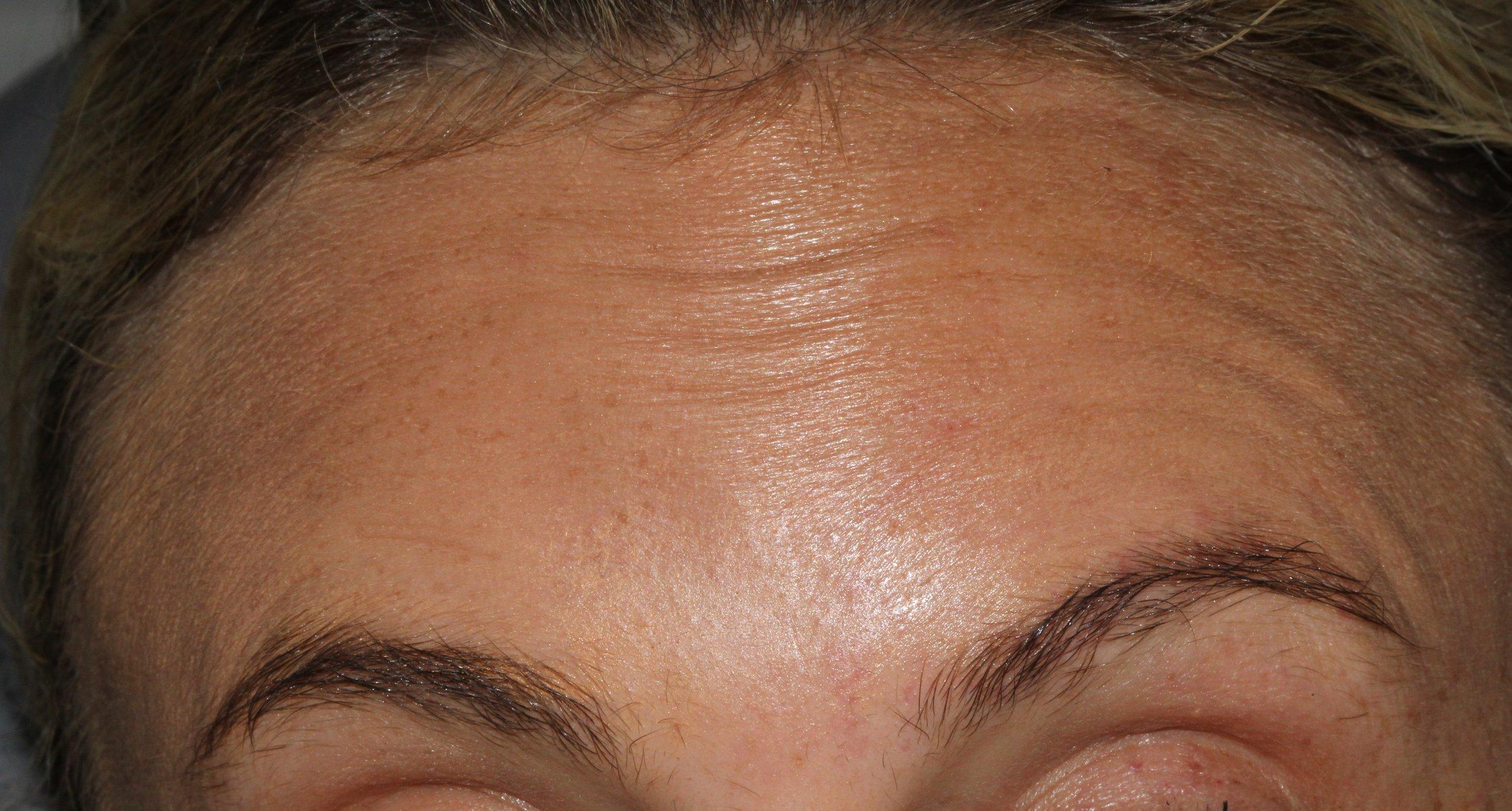 Forehead Raised - BEFORE