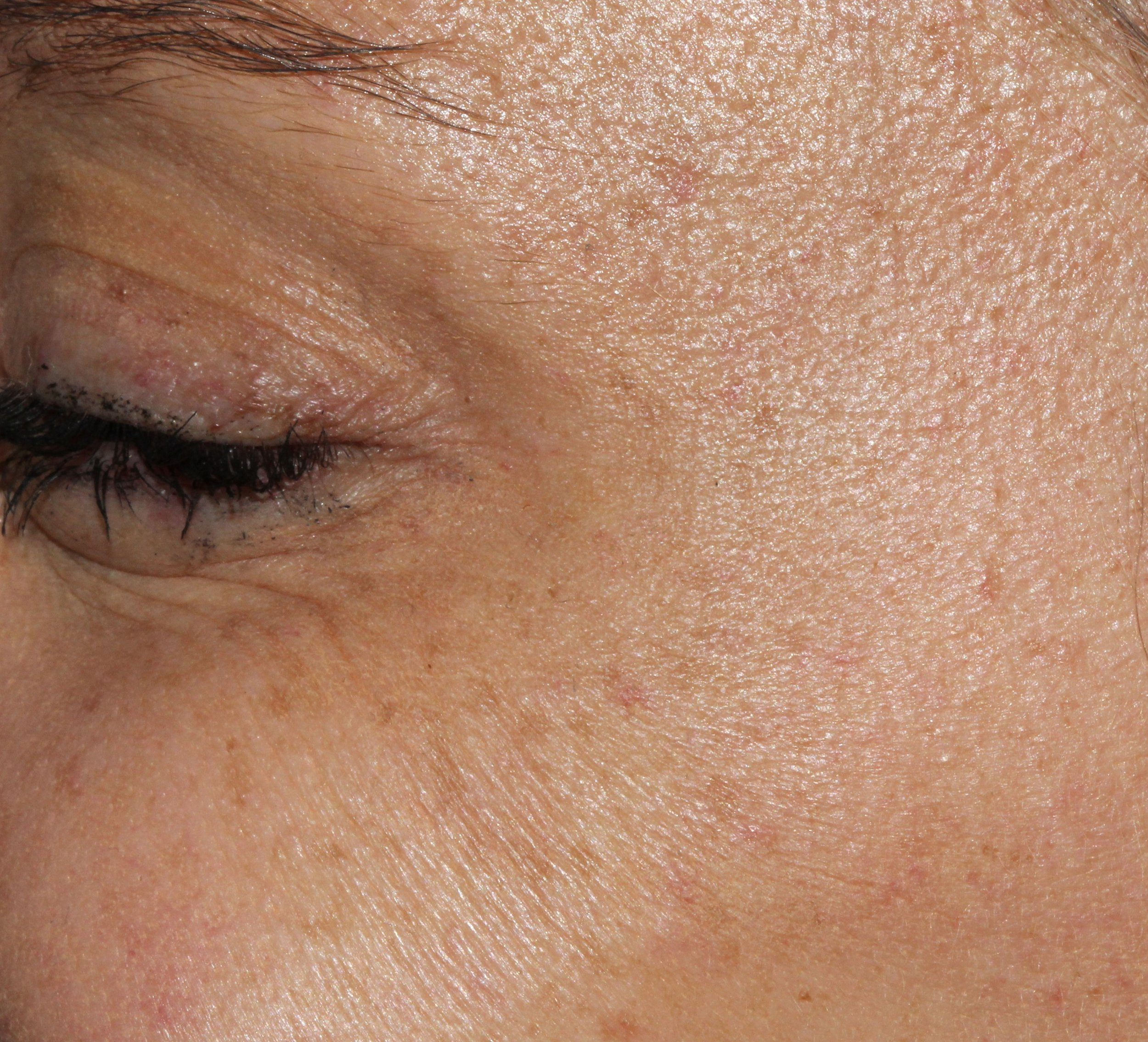 Eye Area - AFTER