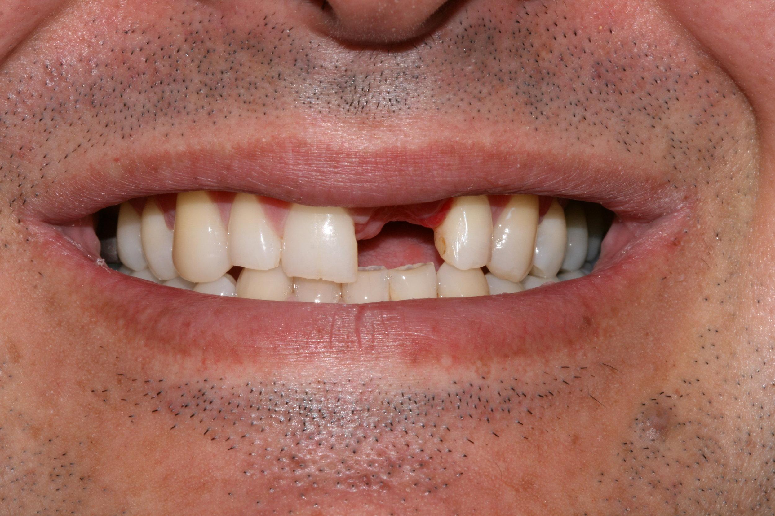 Dental Implant - BEFORE