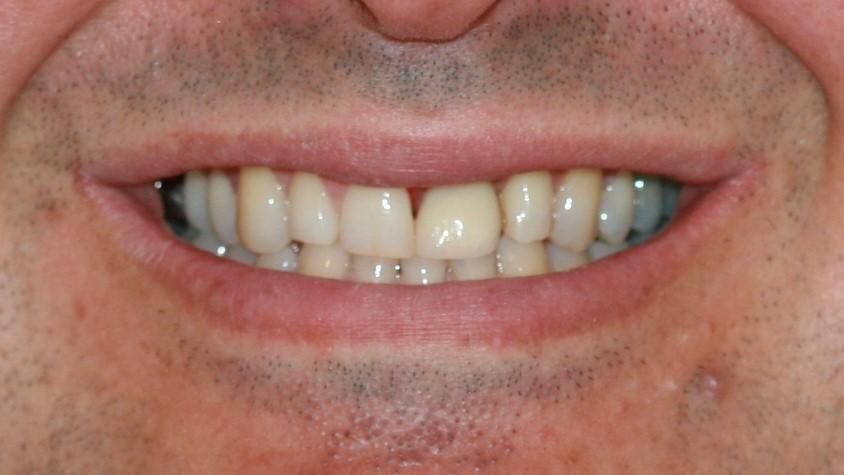 Dental Implant - AFTER