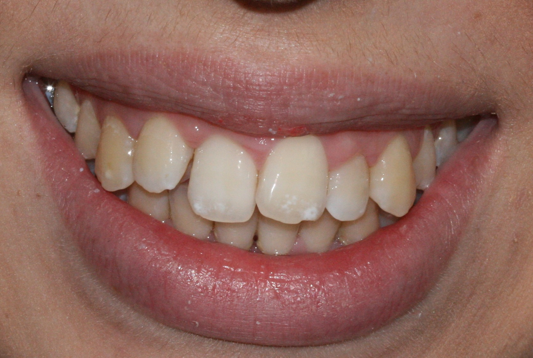 Invisalign - BEFORE