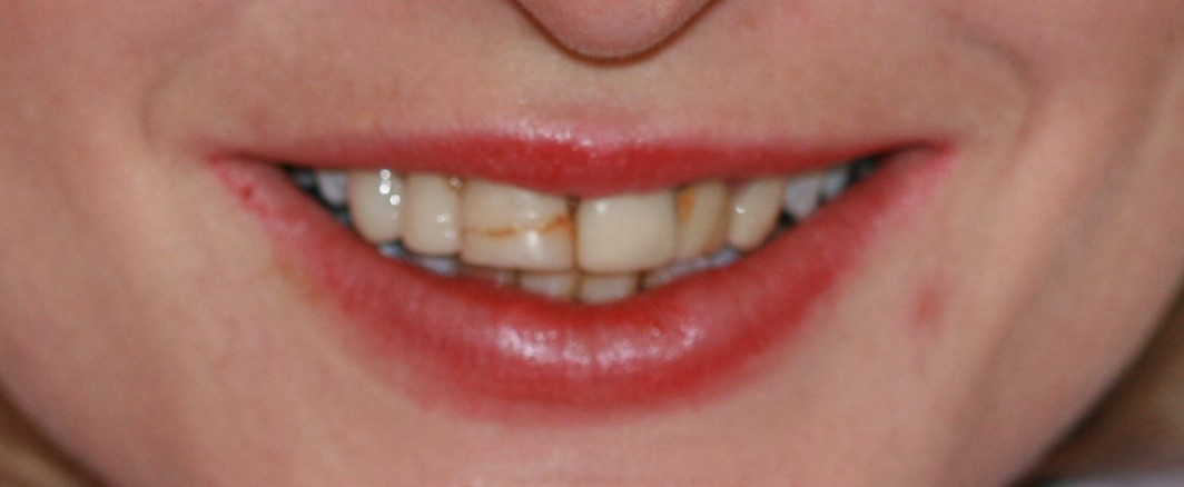Veneers - BEFORE