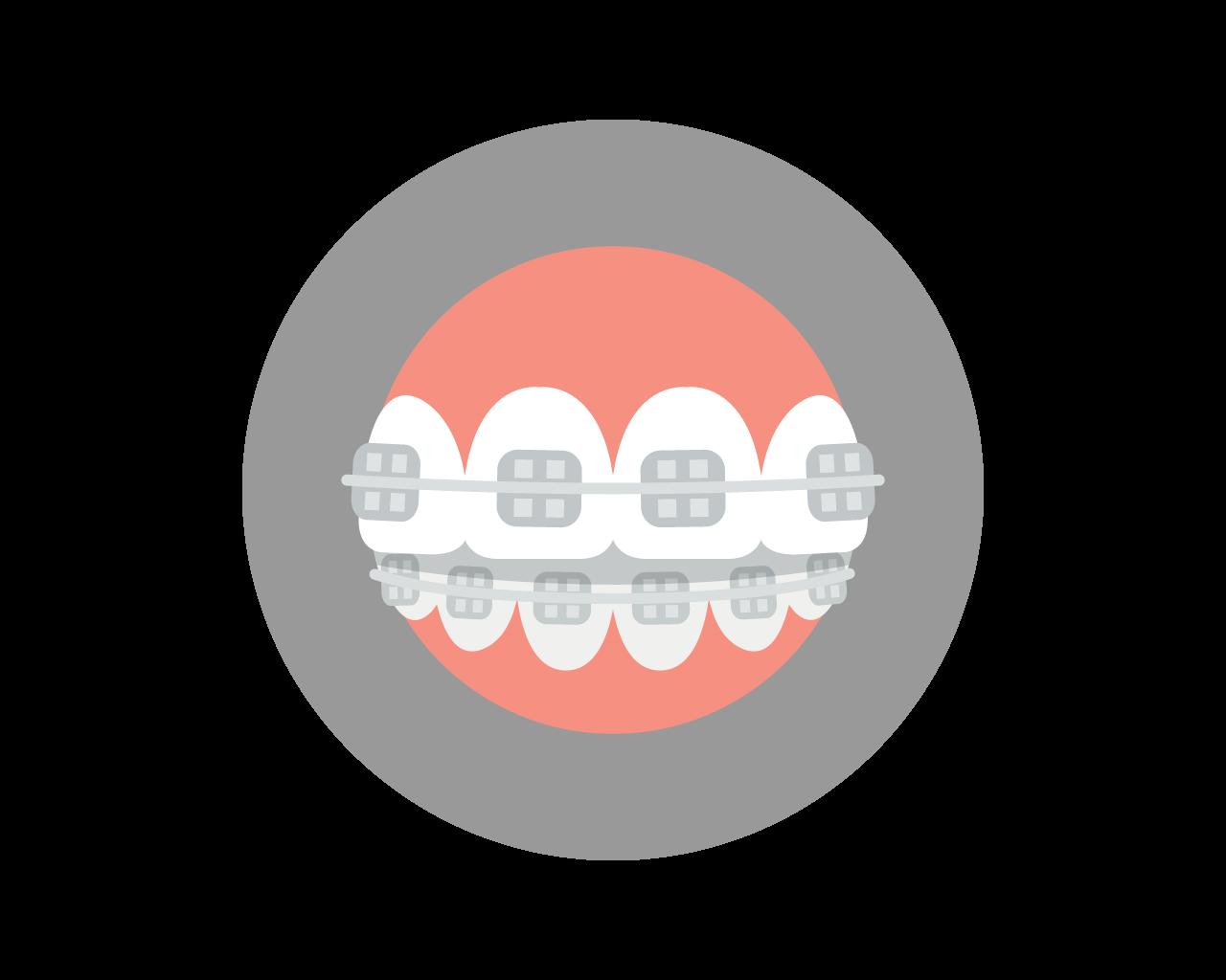 braces-art.jpg