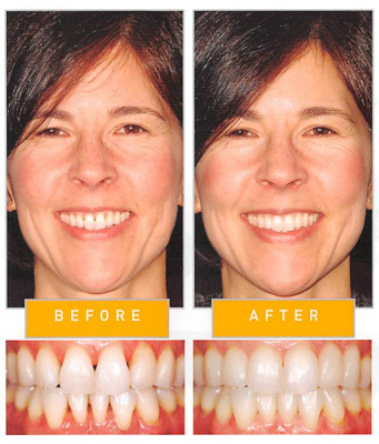 2 bioclear-before-after-female.jpg