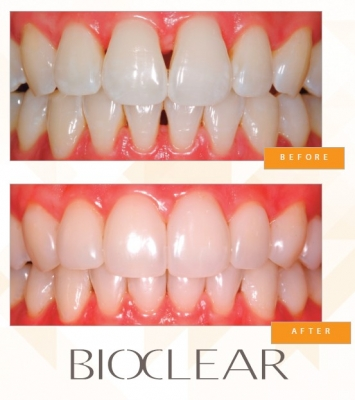 Treating black triangles, gaps and restoring posterior teeth