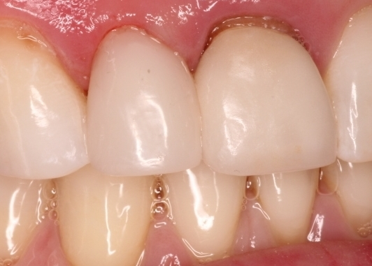 AFTER  The result was a more natural and beautiful restoration that is more conservative and less expensive than veeners. In addition we completed this in one appointment. After one hour she was ready to start her new job. Later she will come back for us to fix her central incisor.