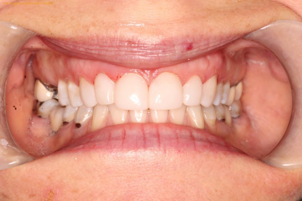 In this photo you can see how the new Bioclear restorations on the upper front teeth relate to the upper arch and the lower teeth. The inclination is more toward buccal(cheek side), the lateral is less rotated than it was giving the appearance of a better alignment. This type of restorations gives the teeth more body mass so more strength and could be modify at any time since it is ceramic composite material.