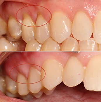 Pinhole Gum Grafting Before and After