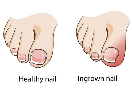 39377785_S_ingrown_toenail.jpg