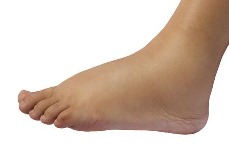 45734629_S_swollen_feet.jpg