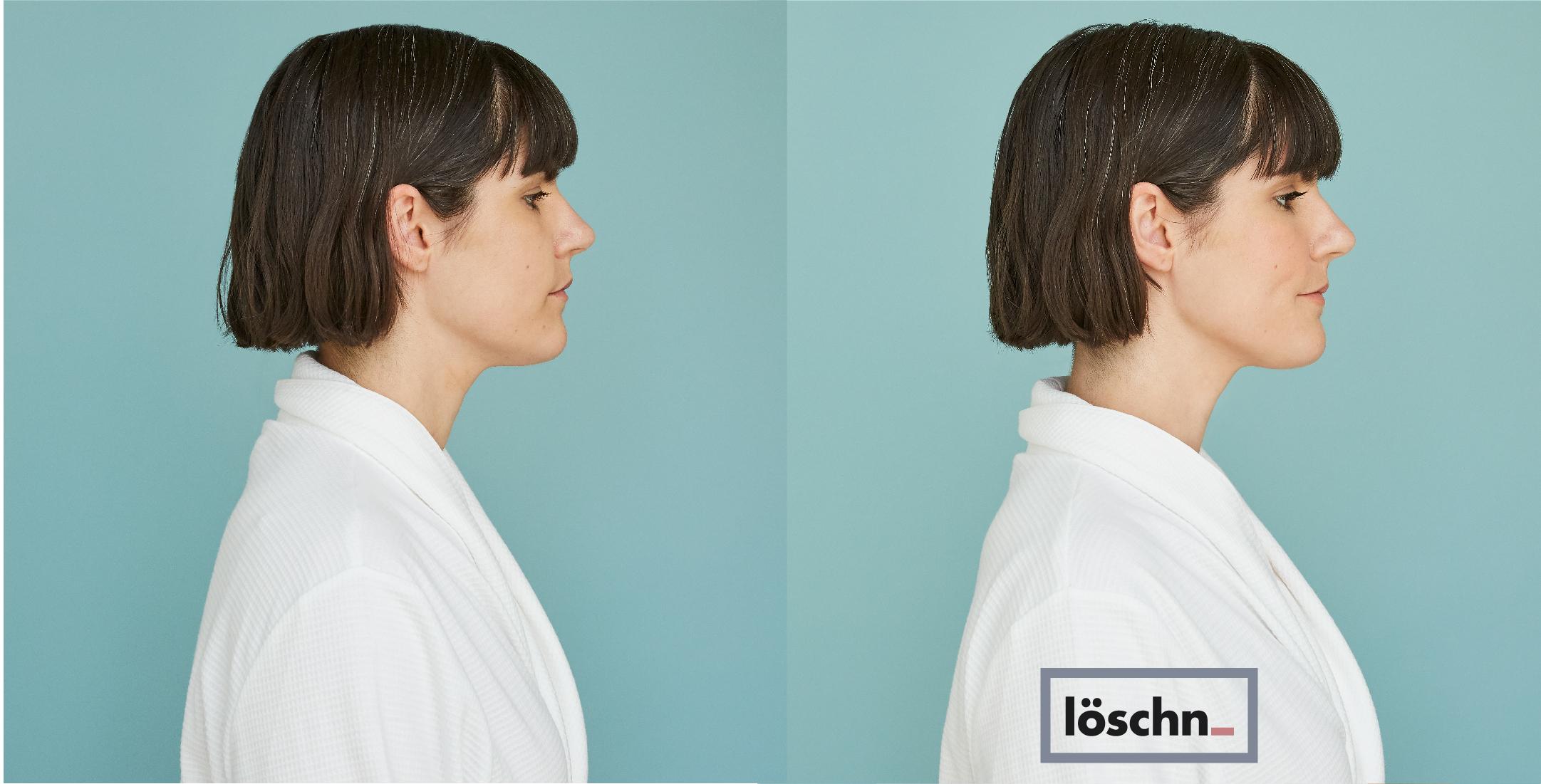 Before-Karen-6.jpg